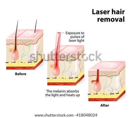 The laser emits an invisible light which penetrates the skin without damaging it. At the hair follicle, laser light absorbed by the pigments is converted into heat. This heat will damage the follicle.