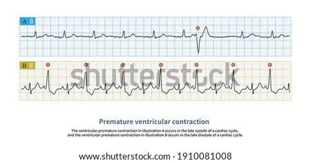 The late diastolic ventricular premature contraction occurs after the sinus P wave. Don't be misdiagnosed as sinus rhythm. Stock fotó ©