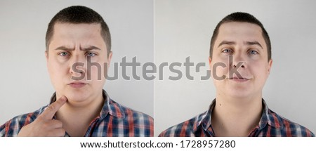 The man has a double chin. Photos before and after plastic surgery of the face. Close-up of a patient's sad face and his fat on his neck. Foto stock ©