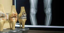 The model of knee joint shown the process of osteoarthritis of knee and total knee replacement surgery. Film both knee in AP on background