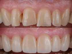 The natural-looking smile makeover case with the dental ceramic veneers and crowns.