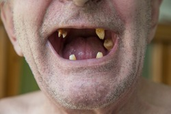 The old man with unshaven bristles opened his mouth in which there are almost all teeth, and inside the yellow teeth
