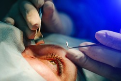 The operation on the eye. Cataract surgery. Vision correction.