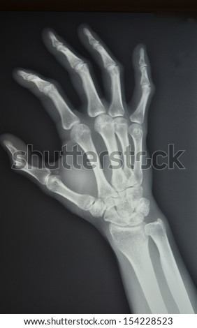 The palm of your hand, left oblique position X-ray