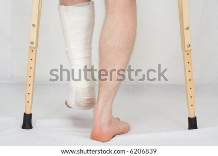 The person with plaster on a foot stands on a floor