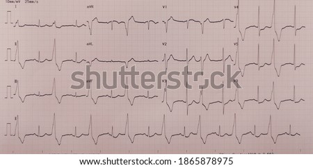 The photograph shows an electrocardiogram of bigeminy pvc with ST depress at V3 - V6 in patients with Non-ST Segment Elevation Myocardial Infraction. Photo stock ©