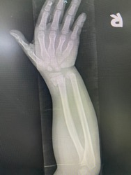 The picture of flim x-ray right hand  of patient who have distal end radius fracture,Medical Technology and Science concept.