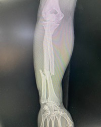 The picture of x-ray of patient who have right radius and ulna bone fracture, Medical Technology and Science concept.
