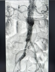The postoperative evaluation consisted of angiogram of the aorta. The angiogram showed stent graft were deployed to infra-renal aaa and common iliac arteries in EVAR operation.