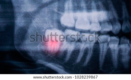 The Radiograph x-ray shows the pain on the lower right  wisdom teeth.  #1028239867