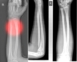 The right X-ray image of the wrist shows the first fracture of the distal and ulna radius and the normal healing.