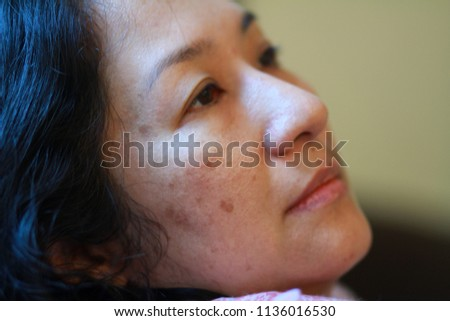 The skin problem of 40s Asian woman.Brownish colored patches or melasma appear on the cheeks. It typically occurs on the face and is symmetrical, with matching marks on both sides of face.