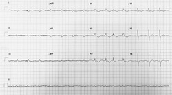 The standard 12 lead electrocardiogram