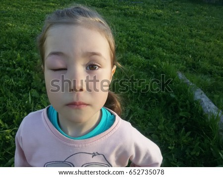 Eye Swelling Allergic Reaction Chinese Food