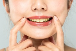 The teeth of the women are yellowed.