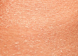 the texture of the epidermis of human skin with flakes and cracked particles closeup
