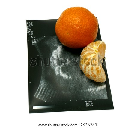 The ultrasound image of tangerine and natural tangerines (medical joke).