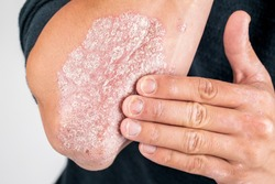 the use of emollient for dry flaky skin, as in the treatment of psoriasis, eczema and other diseases of dry skin