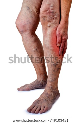 The varicose veins on a legs of old woman isolated on white background.