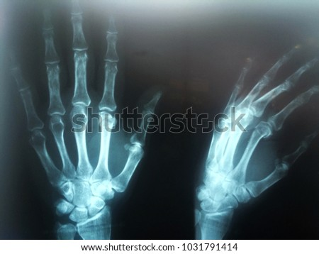 The x ray film the index finger of left hand fracture.