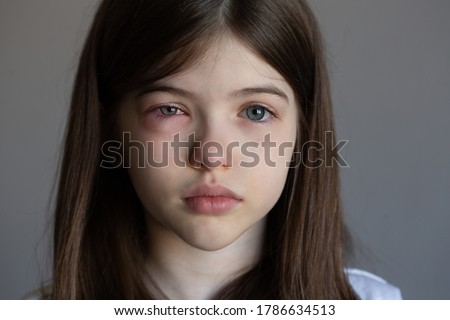 The young girl is allergic. Conjunctivitis, lacrimation, red eyes Foto stock ©