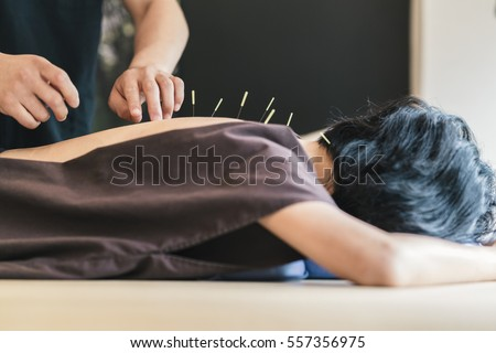Therapist Giving acupuncture Treatment To a Japanese Woman