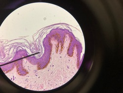 Thick skin under a microscope
