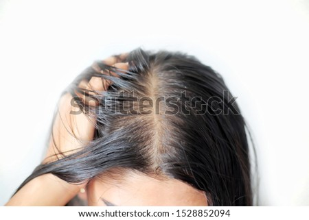 Thin hair and scalp on white background.