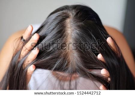 Thin hair problems that make women lack confidence.