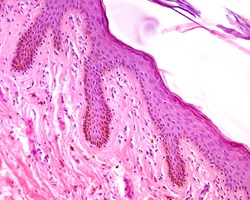 Thin skin epidermis stained with HE showing a large amount of melanin pigment in the basal and spinous layers. The pigmented cells are both melanocytes and keratinocytes.