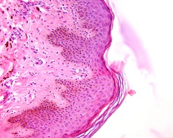 Thin skin epidermis stained with hematoxylin and eosin showing abundant melanin pigment in the basal and spinous layers. The pigmented cells are both melanocytes and keratinocytes.