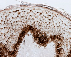 Thin skin epidermis stained with the Fontana silver method showing a large presence of melanin pigment in the basal and spinous layers. The pigmented cells are both melanocytes and keratinocytes.