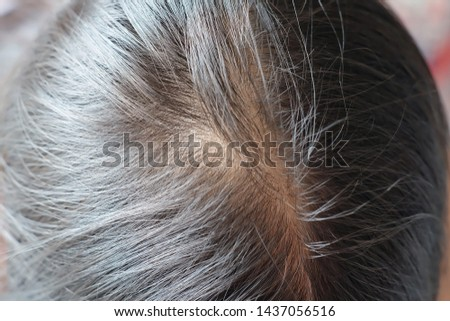 Thinning hsir and sealp issue hair loss treatment head with loss symptoms.