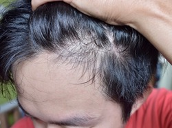Thinning or sparse hair, male pattern hair loss and bald forehead in Southeast Asian, Chinese Burmese young man. Early hair losing at young age. Lateral view.