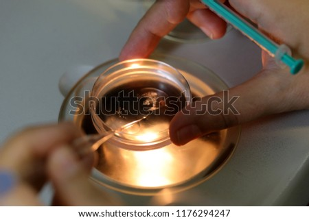 """This images shows the process of """"IVF"""".  After obtaining the mother's ovum and the sperm of father,the technician in the lab separates the mother's ovum and inserts the sperm into it. If they need to"""