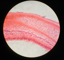 This is a section of trachea