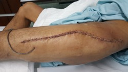 this is a suture wound of fracture femur with redivac drain