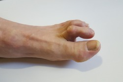 This is what a hammer toe looks like.