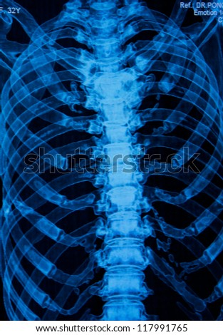 Thoracic spine  X-rays under 3d image