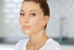 Thread Lift ,markup, thread-lift procedure for facial rejuvenation.