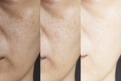 three pictures compared effect Before and After treatment. skin with problems of freckles , pore , dull skin and wrinkles before and after treatment to solve skin problem for better skin result