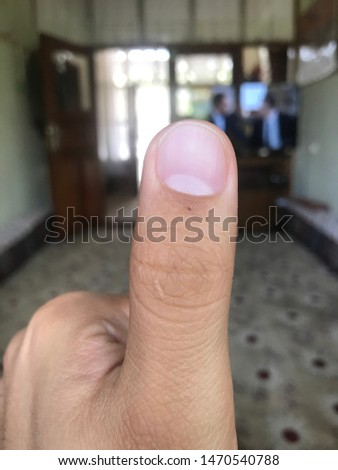 thumb finger nail finger and finger