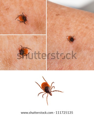 Tick on human skin and one isolated on white - Ixodida