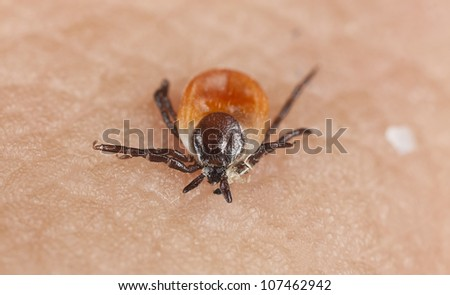 Tick on human skin. Extreme close-up with high magnification