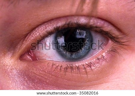 Tired eyes and contact lenses. Close up.