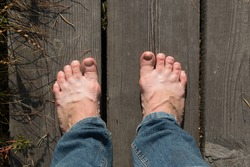 Tired human legs with prominent veins in blue jeans. Bare feet standing on the wooden path on sunny autumn day. Leisure walk on the swamp trail without boots