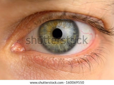 tired man eye with blood vessels, front view
