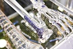 Titanium plates for splicing bones on exhibition