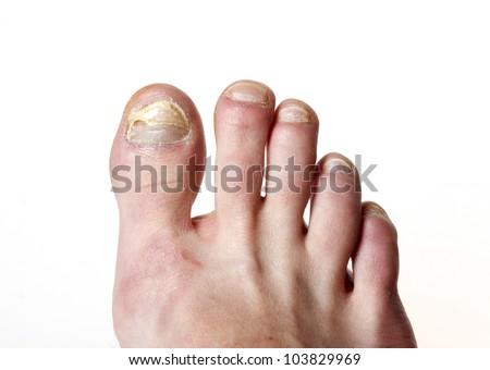 toenail fungus - stock photo