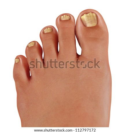 ToeNail fungus close up with a human foot with infected toe nails as a symbol of treating and diagnosing feet with a fungal diseases in the medical field of podiatry isolated on a white background. - stock photo